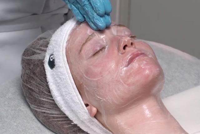 trattamento rhea sense per pelli sensibili